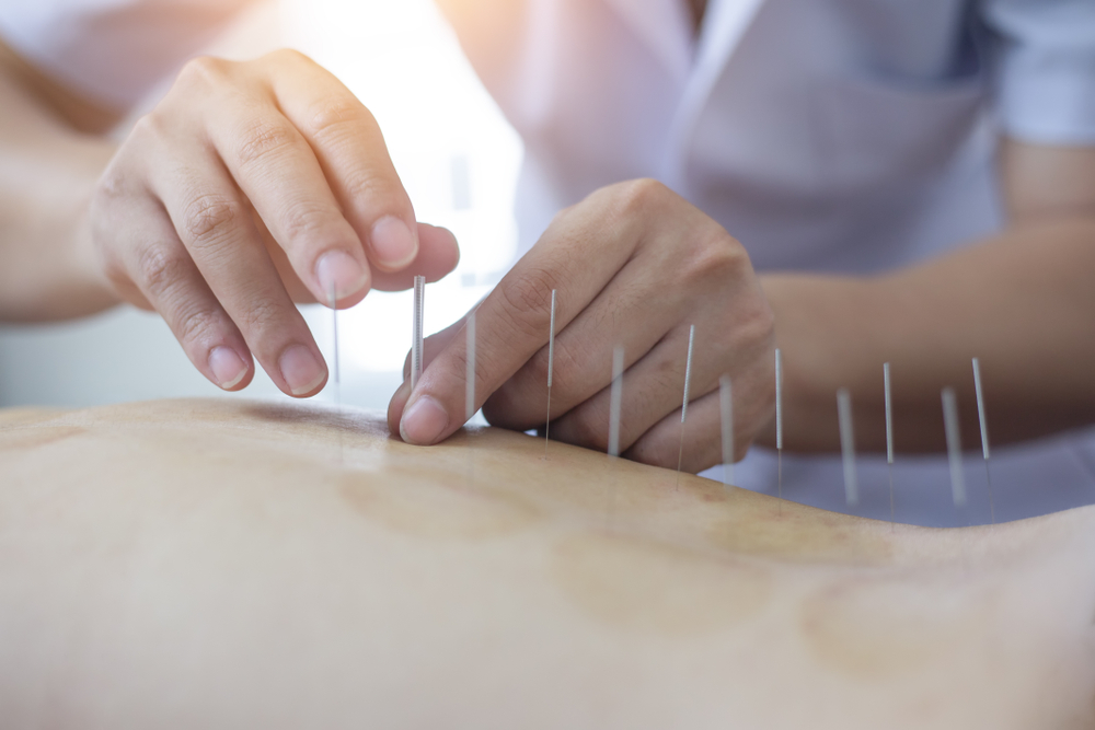 physio placing acupuncture needles for back pain